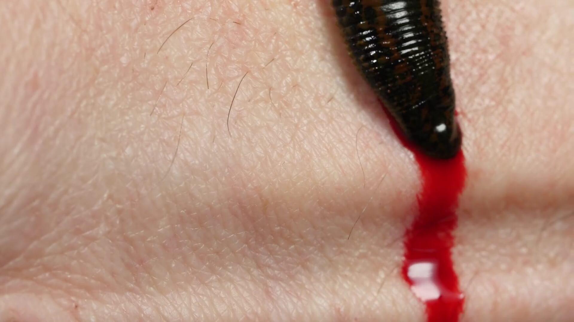 خونریزی بعد از جدا شدن زالو