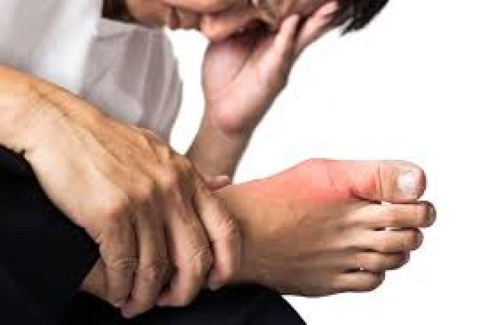 درمان نقرس با زالو درمانی