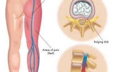 درمان سیاتیک با زالو درمانی