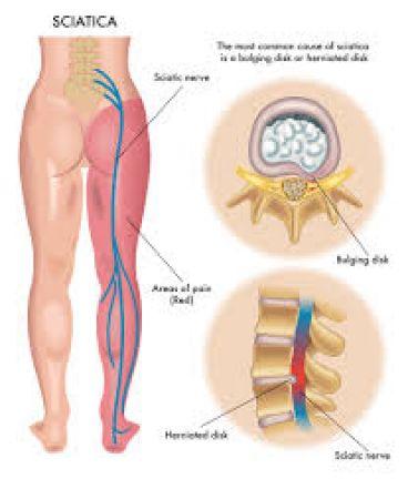 درد سیاتیک چیست؟ درمان سیاتیک با زالو