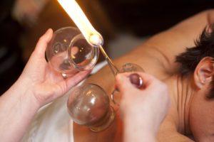 انواع بادکش درمانی در طب سنتی